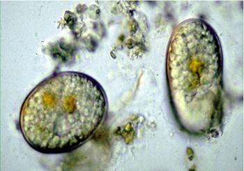 close up of Alexandrium cyst