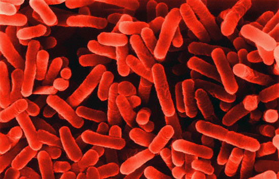 legionella bacterium photo copyright dennis kunkel microscopy, inc