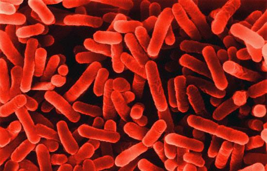 legionella bacterium photo copyright dennis kunkel microscopy, inc