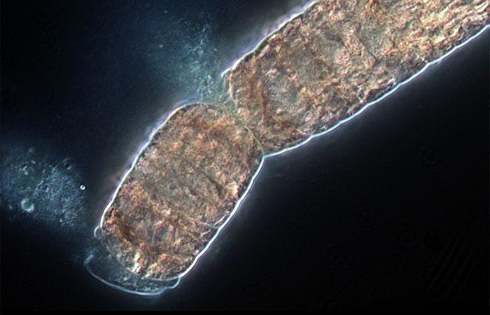 Trichodesmium cells