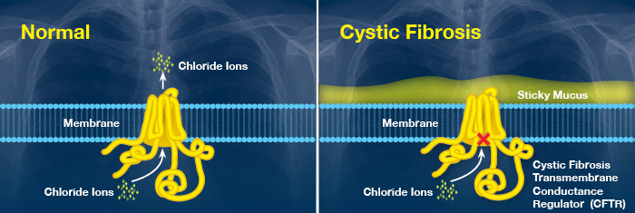 Graphic of a healthy lung and one with cystic fibrosis