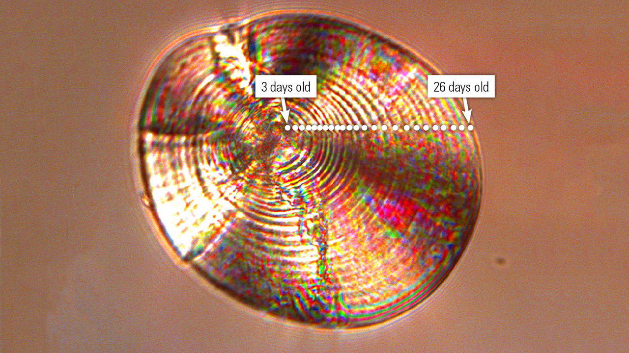 River herring otolith under microscope