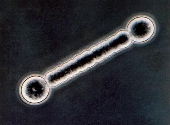 barbell bacteria