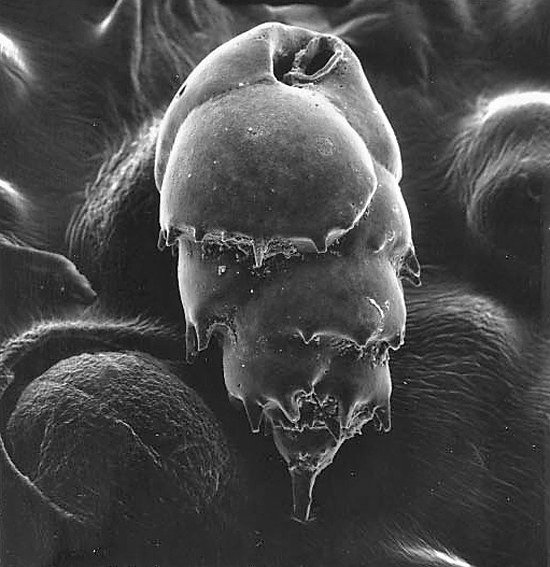 This specimen, Bulimina sp., measures about 400 x 250 micrometers (0.02 x 0.01 inch.)