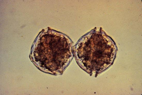 Cells of alexandrium