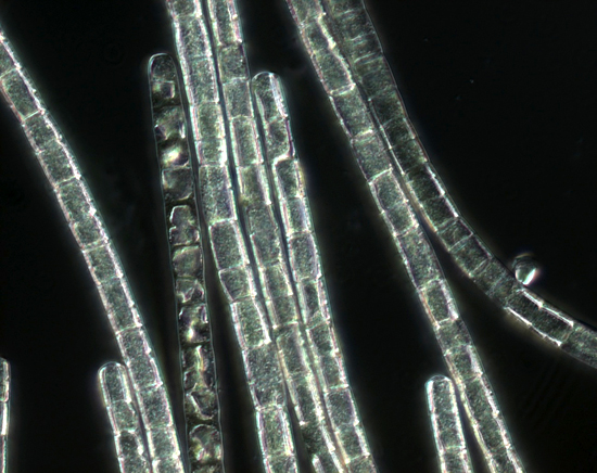 micrograph of a colony of Trichodesmium sp.