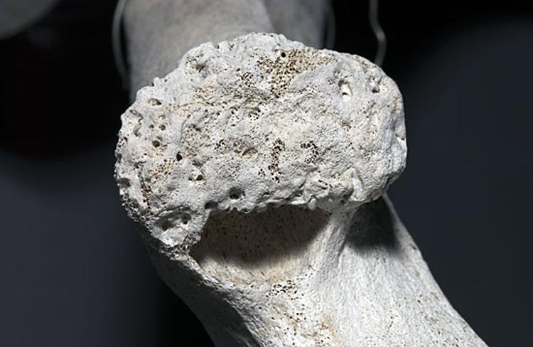 sperm whale bone
