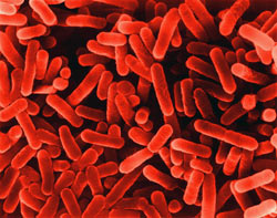 SEM photo of legionella bacterium