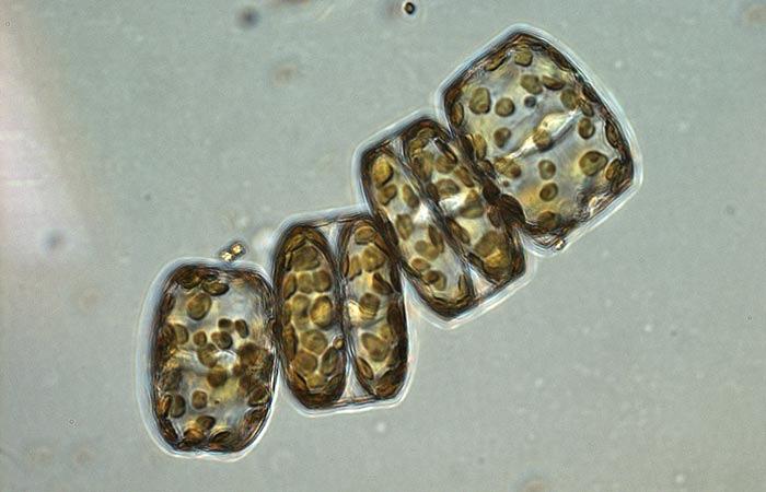 Phytoplankton stress