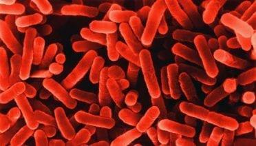 Legions of Legionella Bacteria