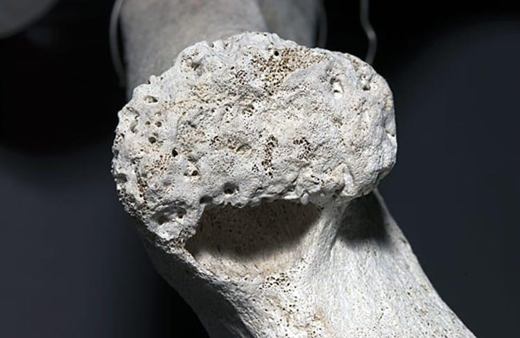 sperm_whale_bone_194915.jpeg
