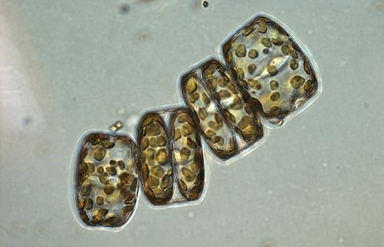 Short-circuiting the Biological Pump